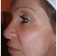 CACI Picture 1 after