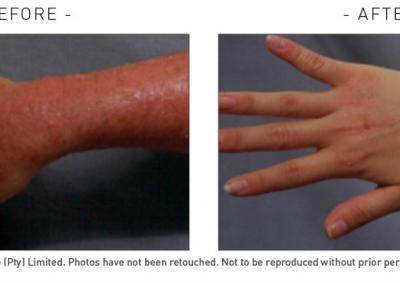 sensitive skin 2